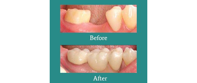 Before and After 5 from Bimal S. Mehta DDS