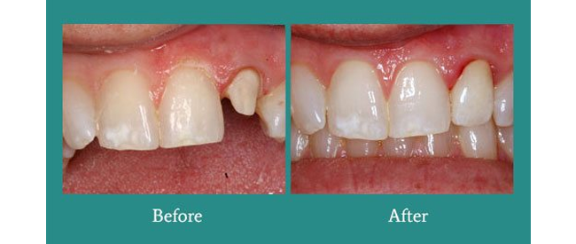 Before and After 2 from Bimal S. Mehta DDS
