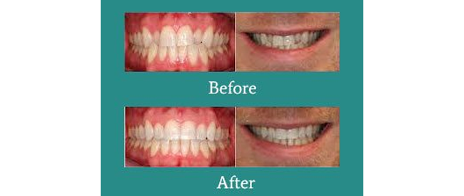 Before and After 4 from Bimal S. Mehta DDS