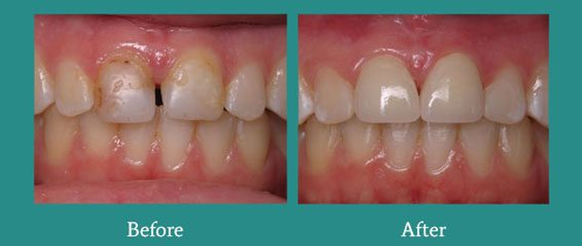 Before and After 3 from Bimal S. Mehta DDS
