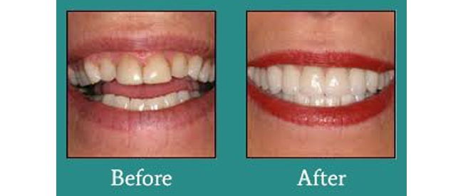 Before and After 6 from Bimal S. Mehta DDS