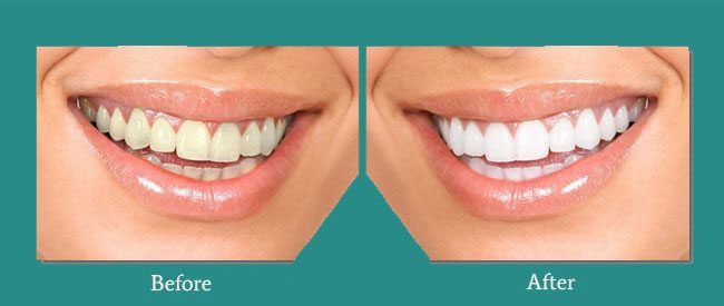 Before and After 1 from Bimal S. Mehta DDS